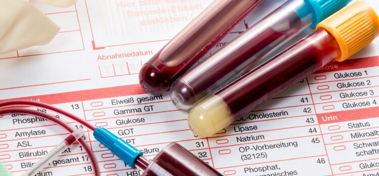a blood test before a steroid cycle