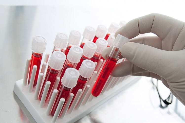 blood tests using steroids