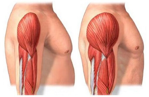 muscle hypertrophy